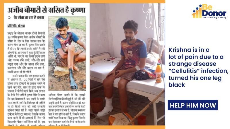 Krishna needs your support to save his life, suffering with a very strange disease called Cellulitis Disease